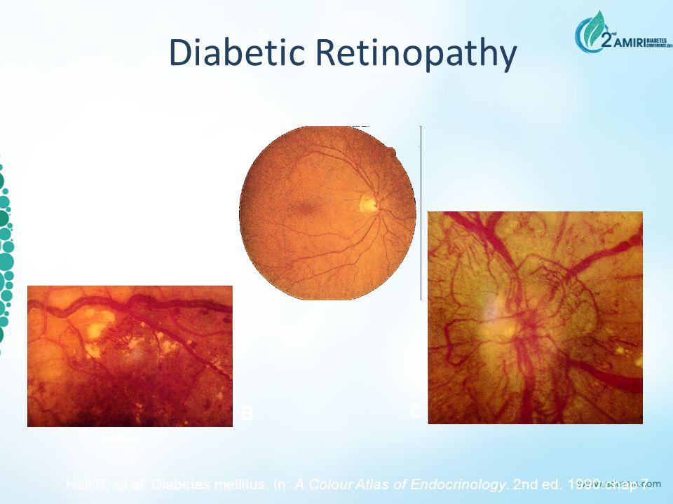 A C B Diabetic Retinopathy Hall R, et al. Diabetes mellitus. In: A Colour Atlas of Endocrinology. 2nd ed. 1990:chap 7.