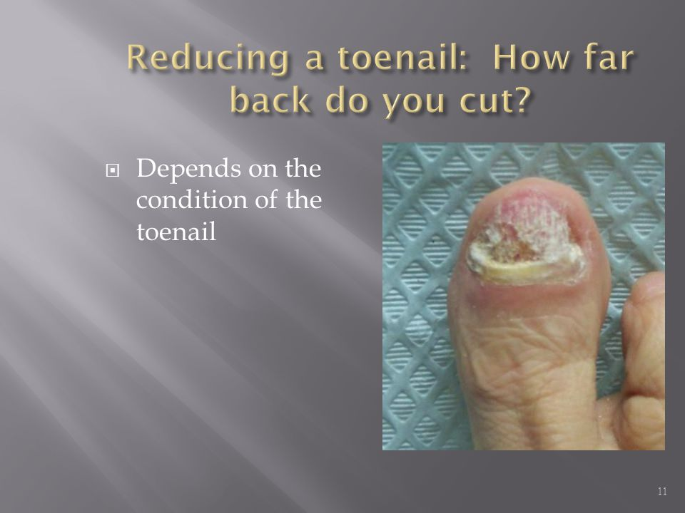  Depends on the condition of the toenail 11
