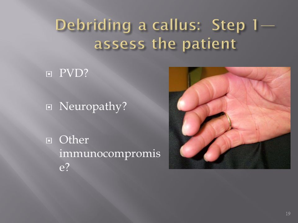  PVD?  Neuropathy?  Other immunocompromis e? 19