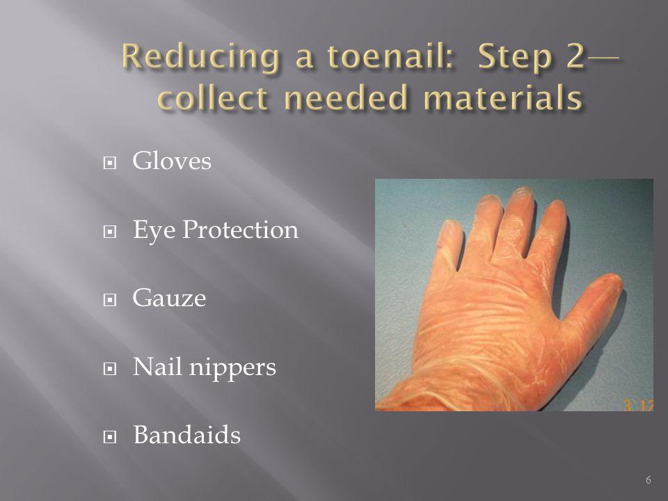  Gloves  Eye Protection  Gauze  Nail nippers  Bandaids 6