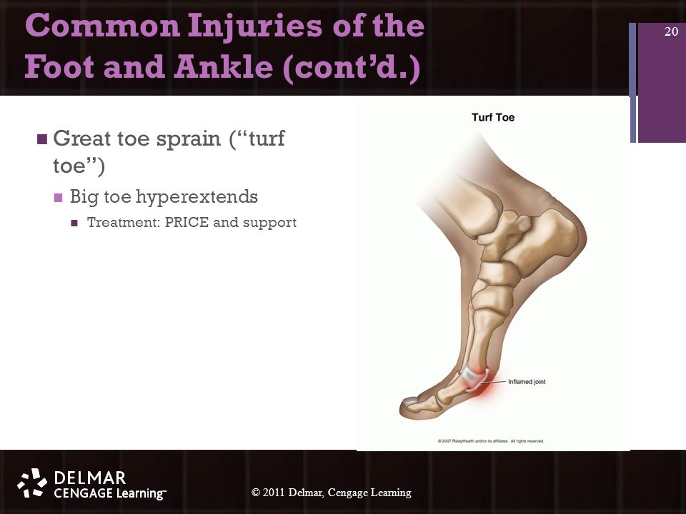 © 2010 Delmar, Cengage Learning 20 © 2011 Delmar, Cengage Learning Common Injuries of the Foot and Ankle (cont'd.) Great toe sprain ( turf toe ) Big toe hyperextends Treatment: PRICE and support 20