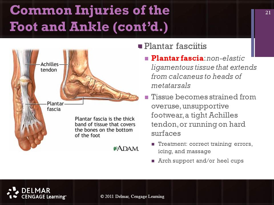 © 2010 Delmar, Cengage Learning 21 © 2011 Delmar, Cengage Learning Common Injuries of the Foot and Ankle (cont'd.) Plantar fasciitis Plantar fascia: non-elastic ligamentous tissue that extends from calcaneus to heads of metatarsals Tissue becomes strained from overuse, unsupportive footwear, a tight Achilles tendon, or running on hard surfaces Treatment: correct training errors, icing, and massage Arch support and/or heel cups 21