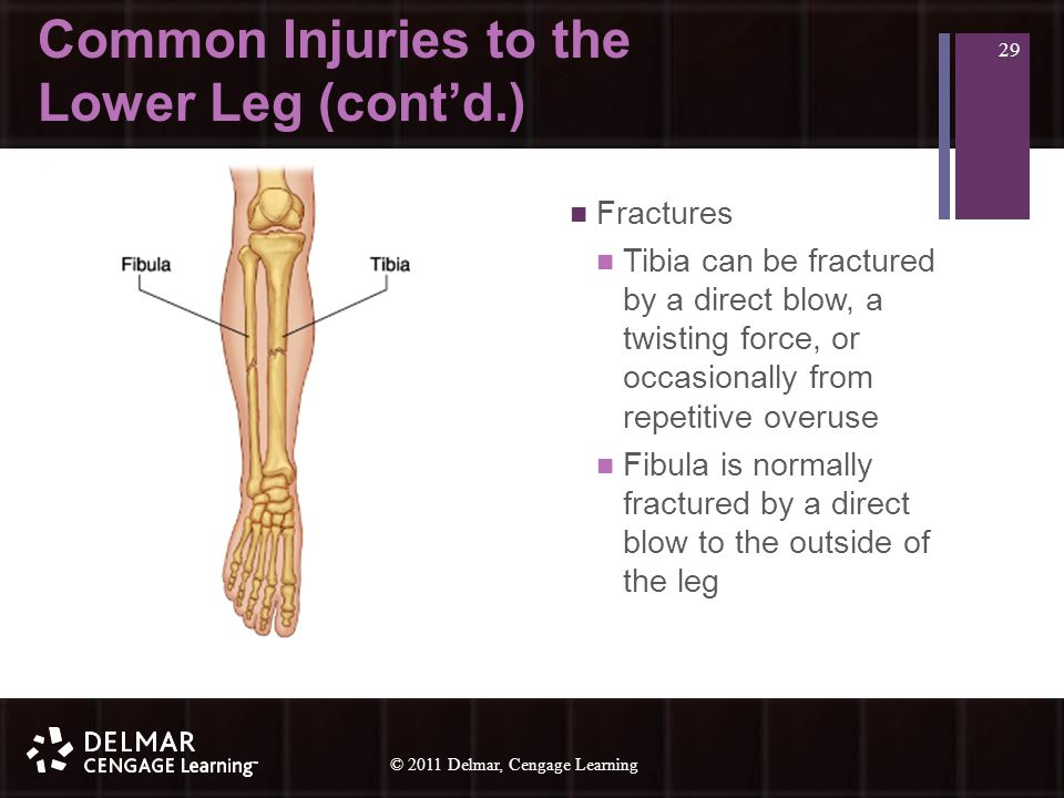 © 2010 Delmar, Cengage Learning 29 © 2011 Delmar, Cengage Learning Common Injuries to the Lower Leg (cont'd.) Fractures Tibia can be fractured by a direct blow, a twisting force, or occasionally from repetitive overuse Fibula is normally fractured by a direct blow to the outside of the leg 29