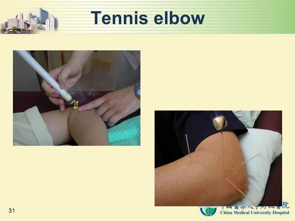 31 Tennis elbow