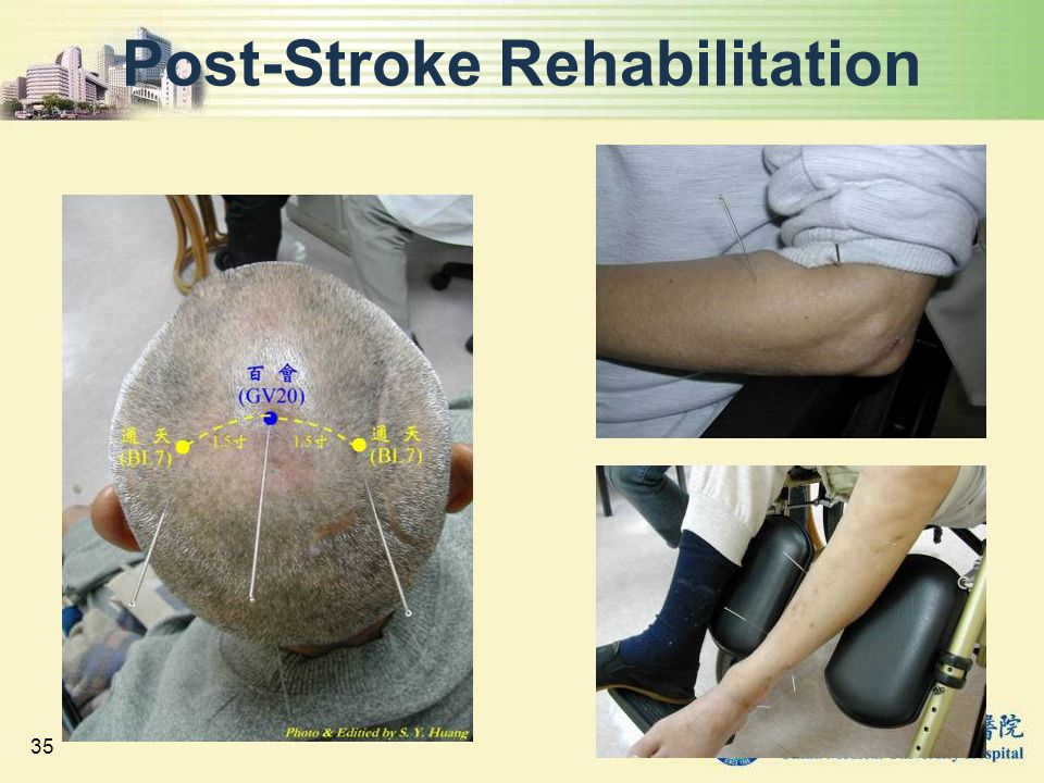 35 Post-Stroke Rehabilitation