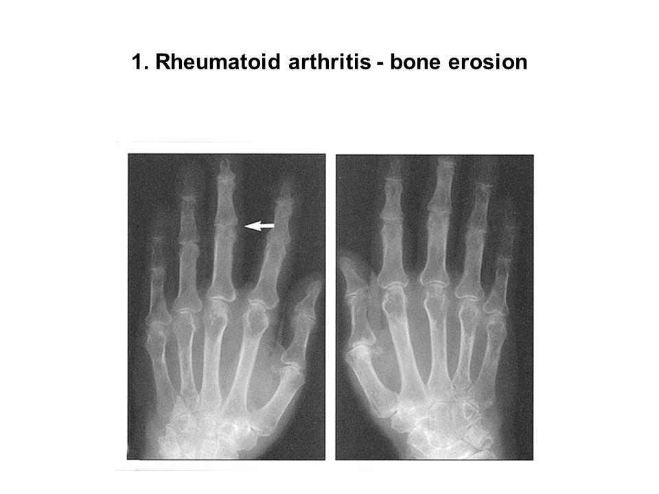 1. Rheumatoid arthritis - bone erosion
