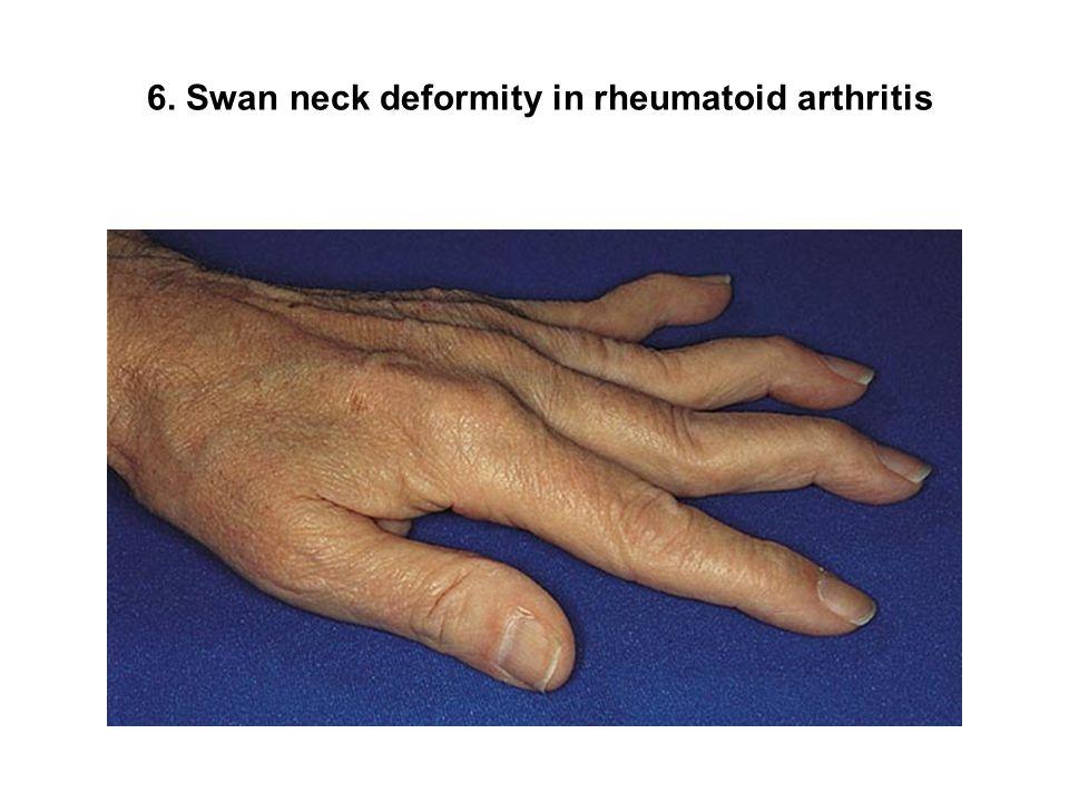 6. Swan neck deformity in rheumatoid arthritis