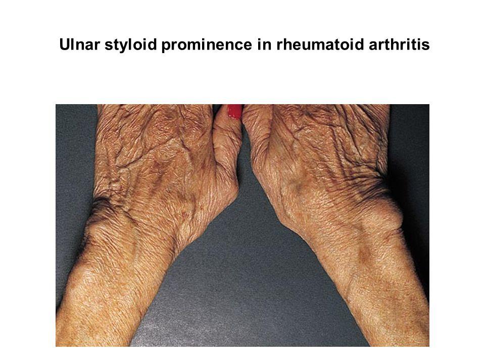 Ulnar styloid prominence in rheumatoid arthritis
