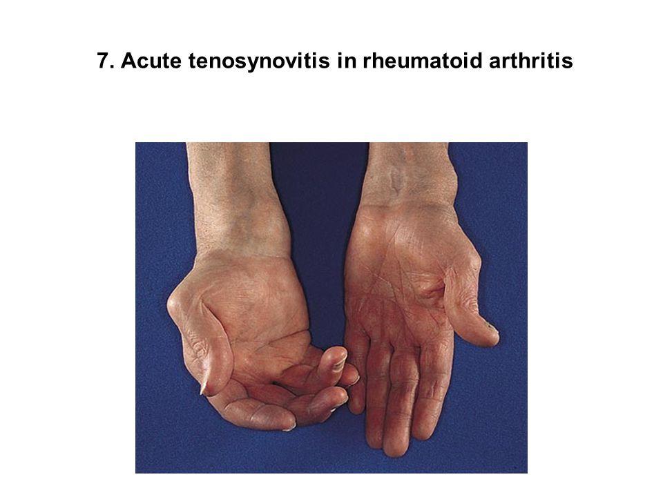 7. Acute tenosynovitis in rheumatoid arthritis