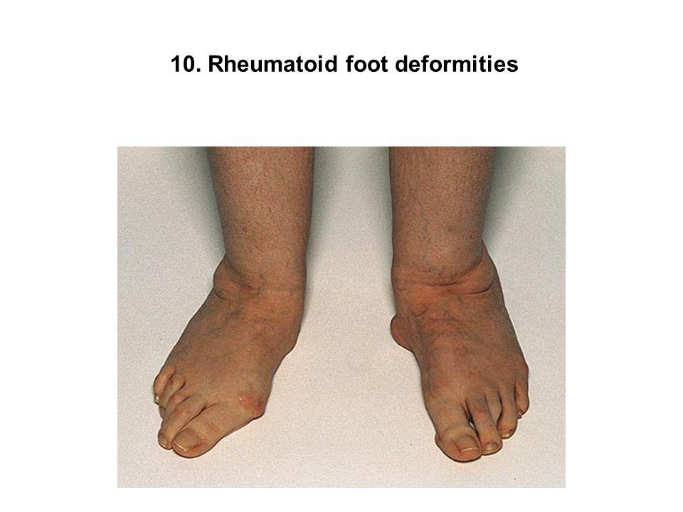 10. Rheumatoid foot deformities