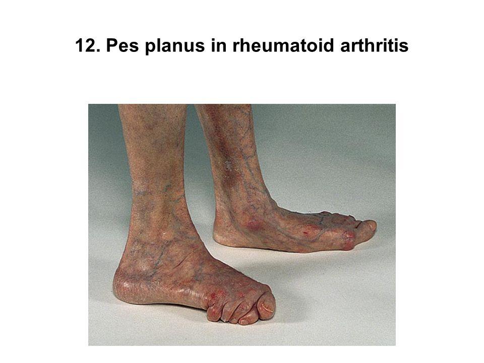 12. Pes planus in rheumatoid arthritis