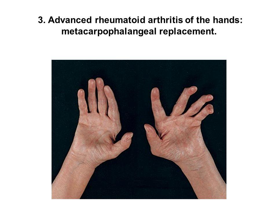 3. Advanced rheumatoid arthritis of the hands: metacarpophalangeal replacement.