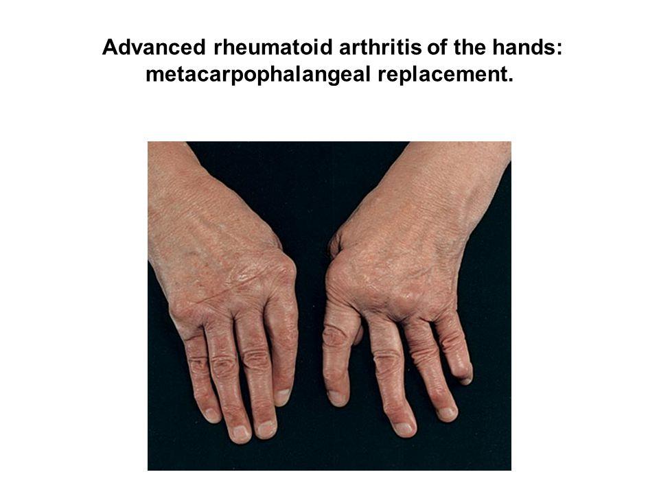 Advanced rheumatoid arthritis of the hands: metacarpophalangeal replacement.