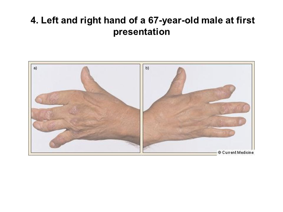 4. Left and right hand of a 67-year-old male at first presentation