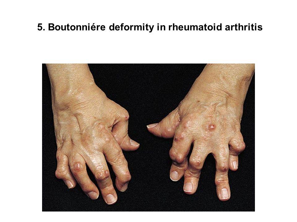 5. Boutonniére deformity in rheumatoid arthritis
