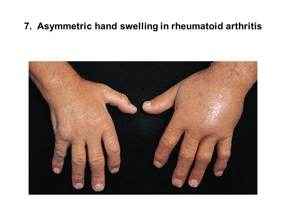 7. Asymmetric hand swelling in rheumatoid arthritis