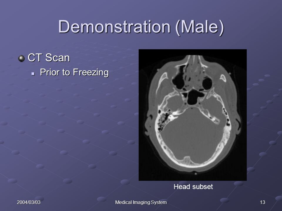 132004/03/03Medical Imaging System Demonstration (Male) CT Scan Prior to Freezing Prior to Freezing Head subset