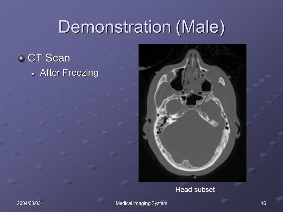 162004/03/03Medical Imaging System Demonstration (Male) CT Scan After Freezing After Freezing Head subset