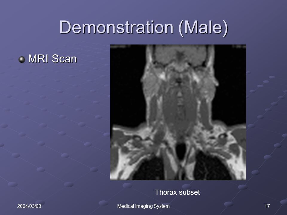 172004/03/03Medical Imaging System Demonstration (Male) MRI Scan Thorax subset