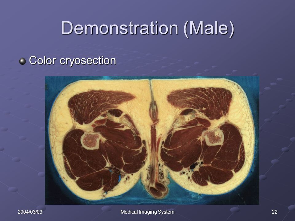 222004/03/03Medical Imaging System Demonstration (Male) Color cryosection