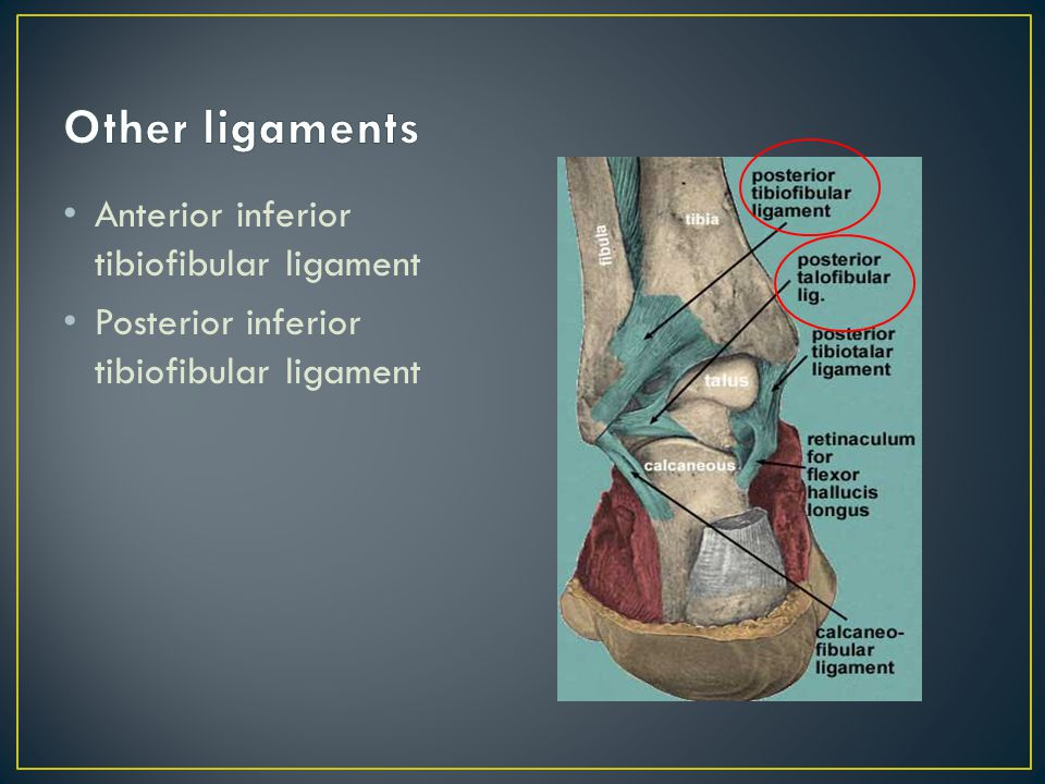 Anterior inferior tibiofibular ligament Posterior inferior tibiofibular ligament