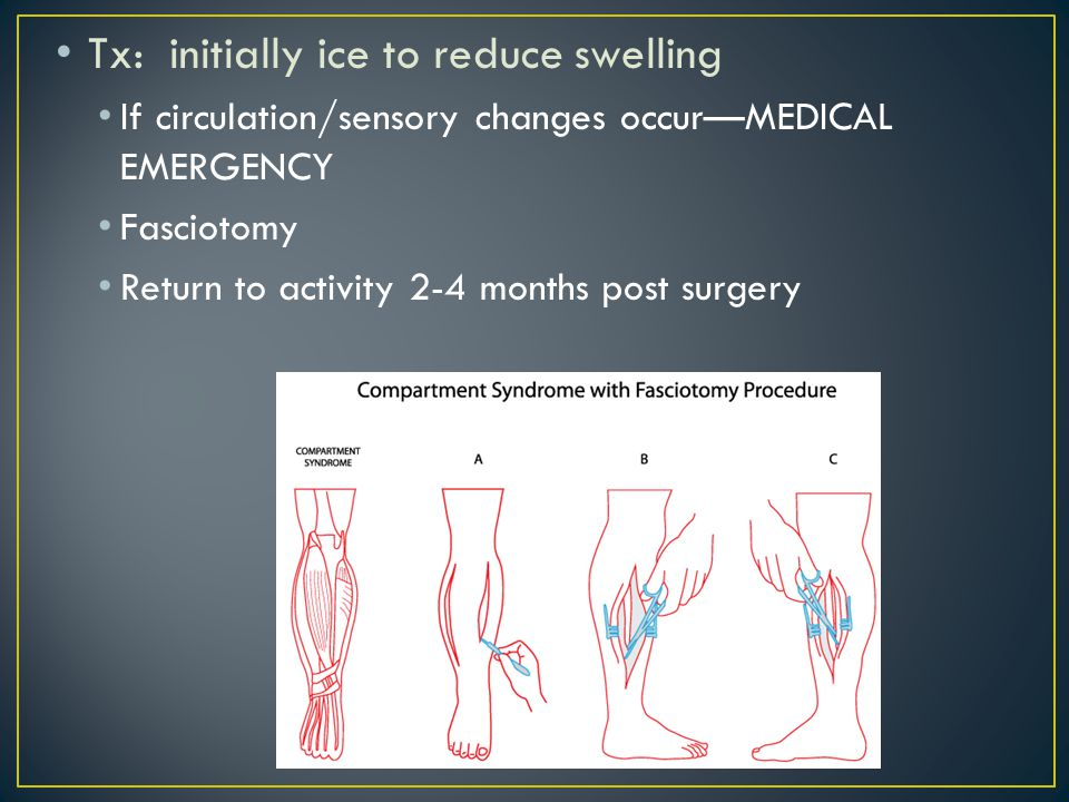 Tx: initially ice to reduce swelling If circulation/sensory changes occur—MEDICAL EMERGENCY Fasciotomy Return to activity 2-4 months post surgery