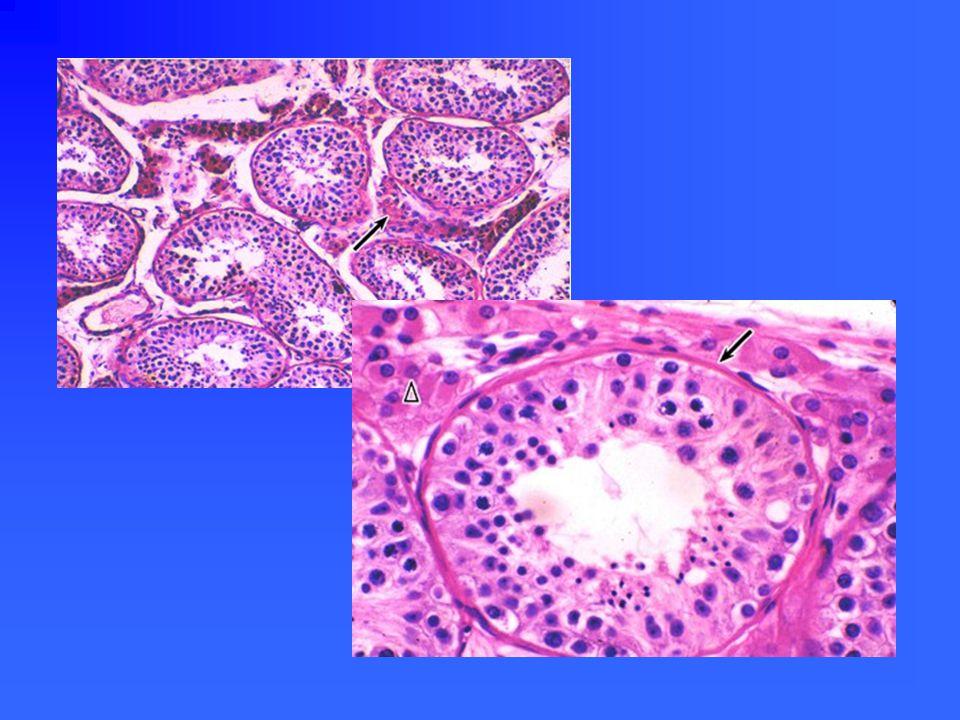 睾丸间质 interstitial cell 睾丸间质细胞 雄激素