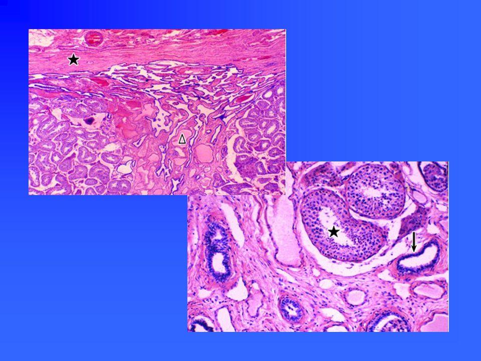 直精小管、睾丸网模式图