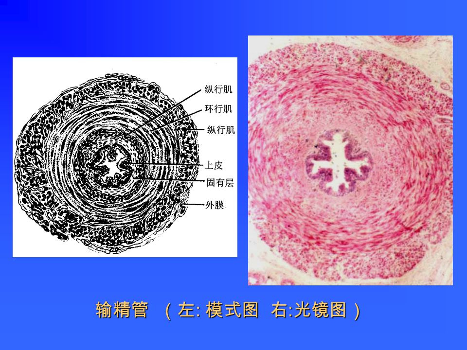 附睾管和输出小管(人)
