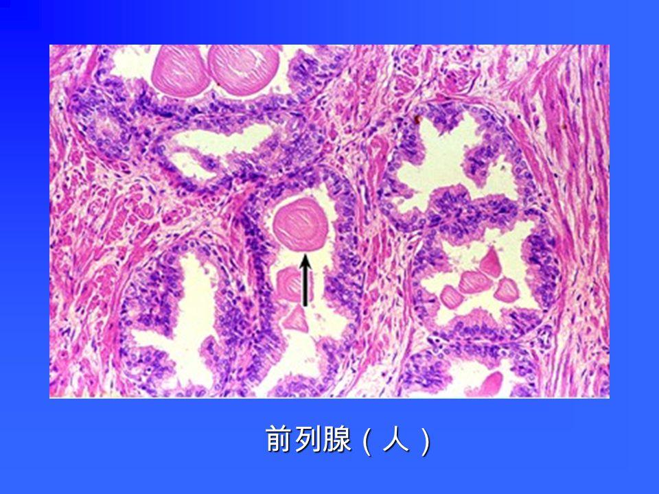 复管泡状腺 分泌部上皮单层立方、柱状、假复层柱状 前列腺凝固体 前列腺结石 前列腺凝固体 前列腺结石