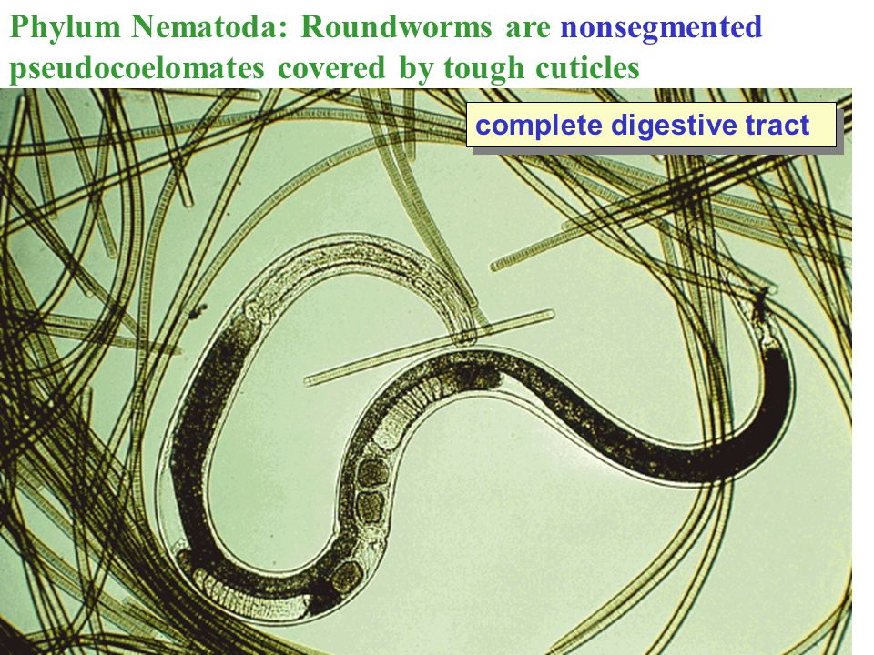 complete digestive tract Phylum Nematoda: Roundworms are nonsegmented pseudocoelomates covered by tough cuticles