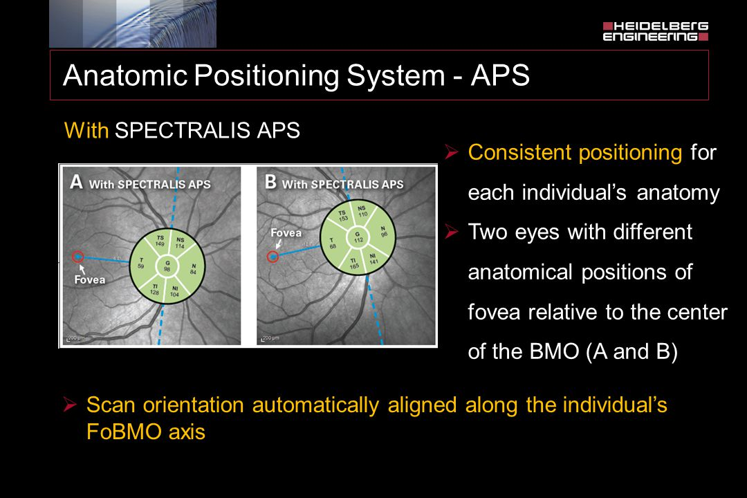 Anatomic Positioning System - APS With SPECTRALIS APS  Consistent positioning for each individual's anatomy  Two eyes with different anatomical posi