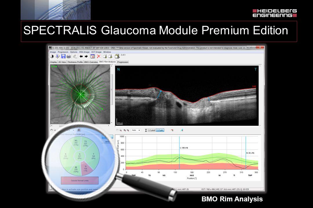 BMO Rim Analysis SPECTRALIS Glaucoma Module Premium Edition