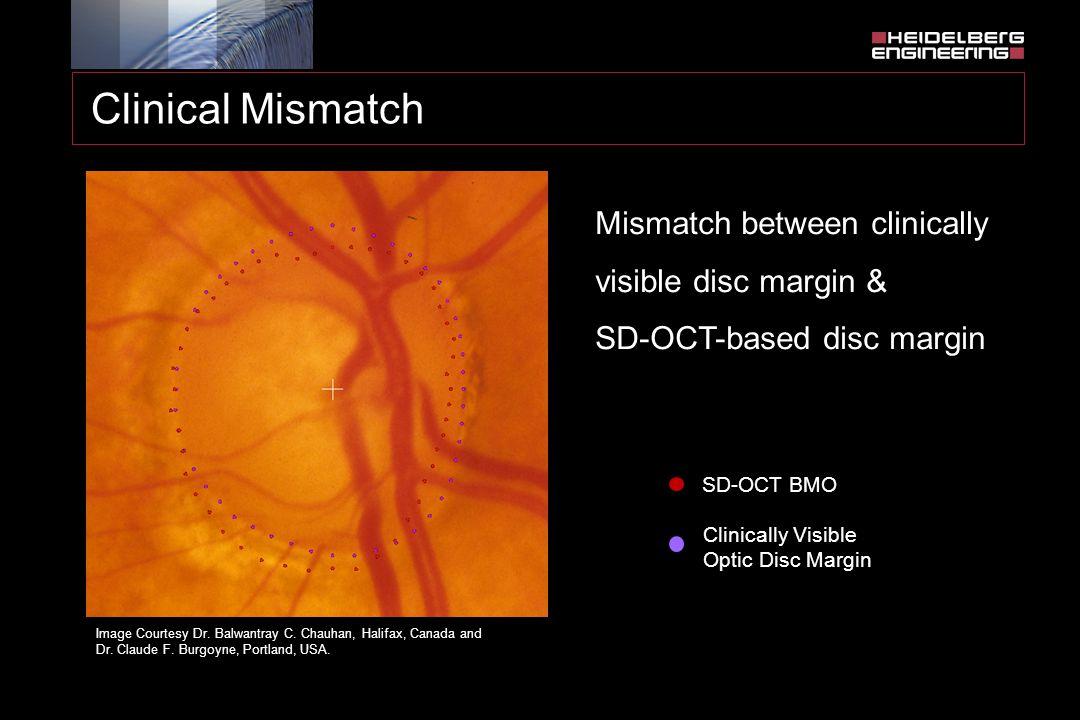 SD-OCT BMO Clinically Visible Optic Disc Margin Image Courtesy Dr. Balwantray C. Chauhan, Halifax, Canada and Dr. Claude F. Burgoyne, Portland, USA. C