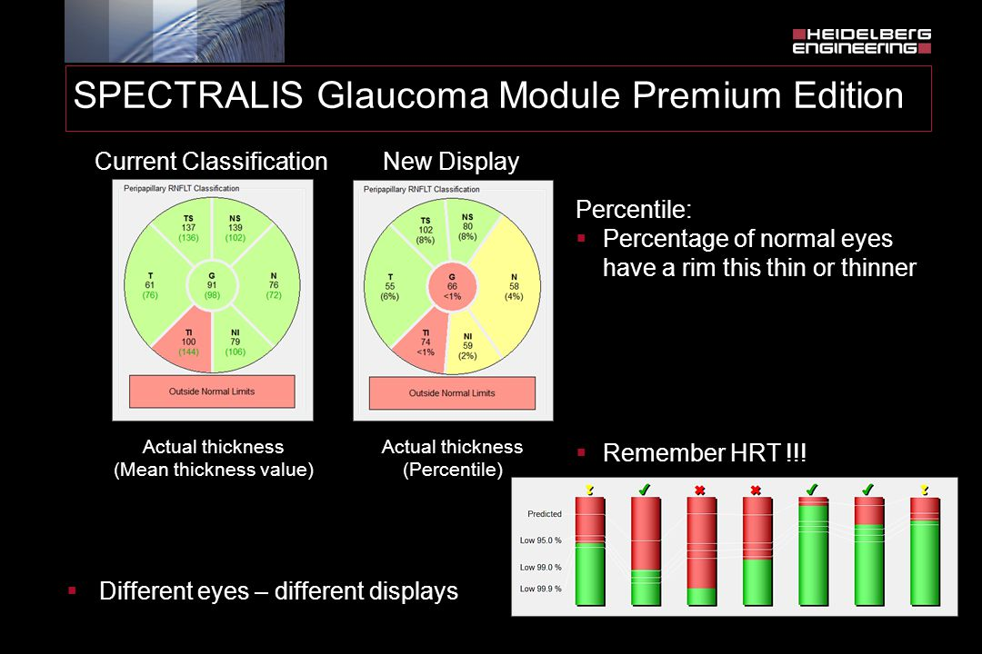 SPECTRALIS Glaucoma Module Premium Edition Current Classification Percentile:  Percentage of normal eyes have a rim this thin or thinner Actual thick
