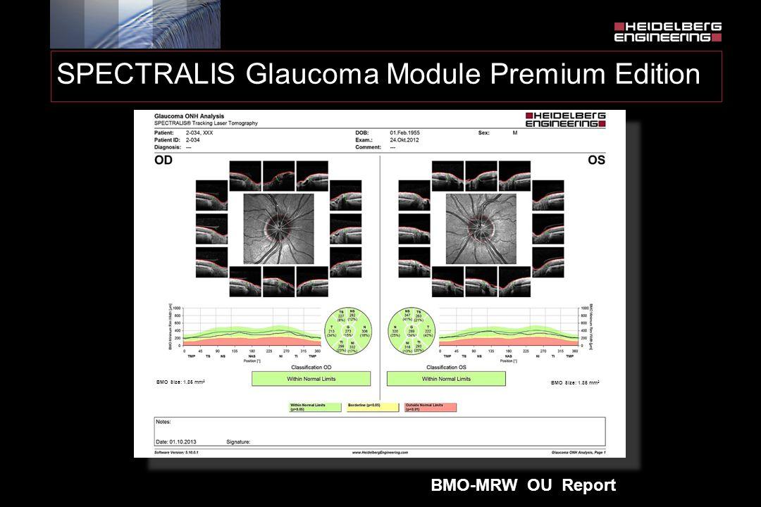 SPECTRALIS Glaucoma Module Premium Edition BMO-MRW OU Report BMO Size: 1.85 mm 2