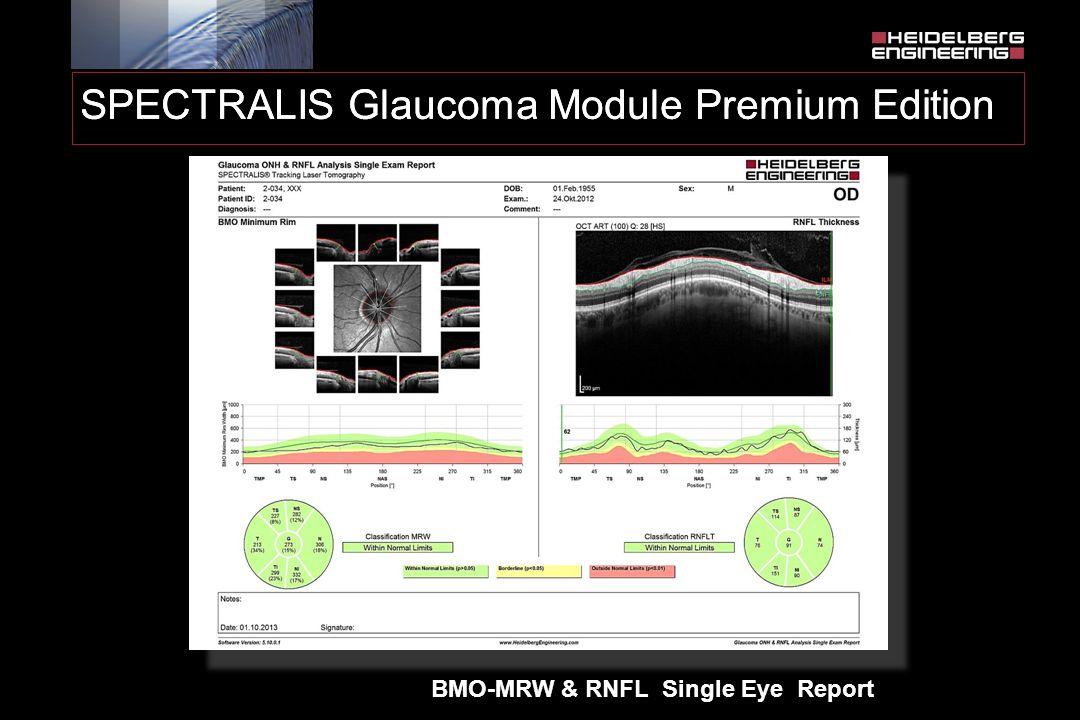 SPECTRALIS Glaucoma Module Premium Edition BMO-MRW & RNFL Single Eye Report