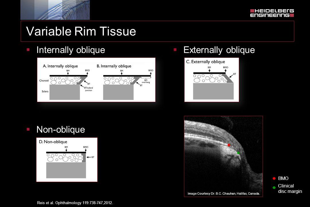 Variable Rim Tissue  Internally oblique  Non-oblique Reis et al. Ophthalmology 119:738-747,2012.  Externally oblique Image Courtesy Dr. B.C. Chauha