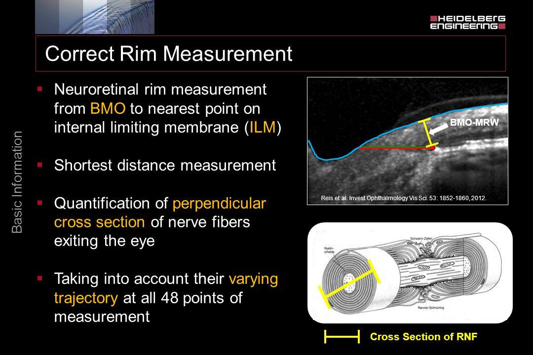 Correct Rim Measurement Basic Information  Neuroretinal rim measurement from BMO to nearest point on internal limiting membrane (ILM)  Shortest dist