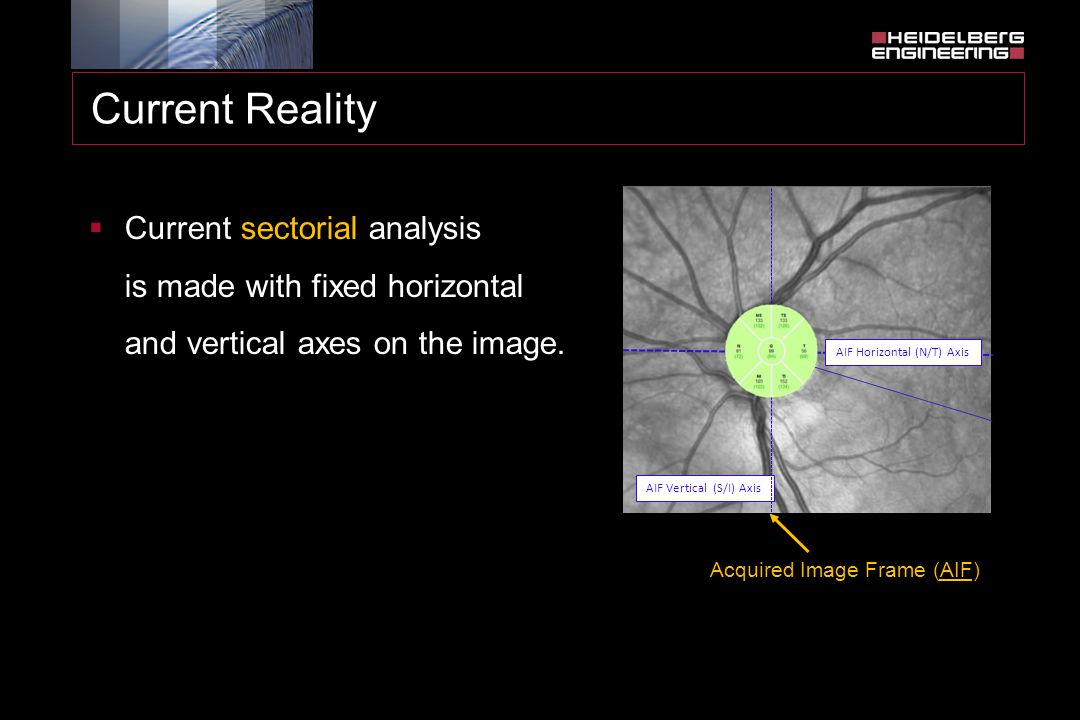 Current Reality  Current sectorial analysis is made with fixed horizontal and vertical axes on the image. AIF Vertical (S/I) Axis Acquired Image Fram