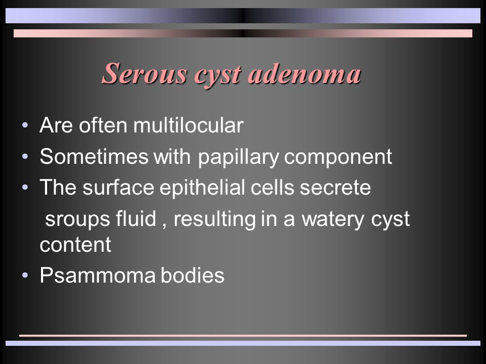 Serous cyst adenoma Are often multilocular Sometimes with papillary component The surface epithelial cells secrete sroups fluid, resulting in a watery cyst content Psammoma bodies