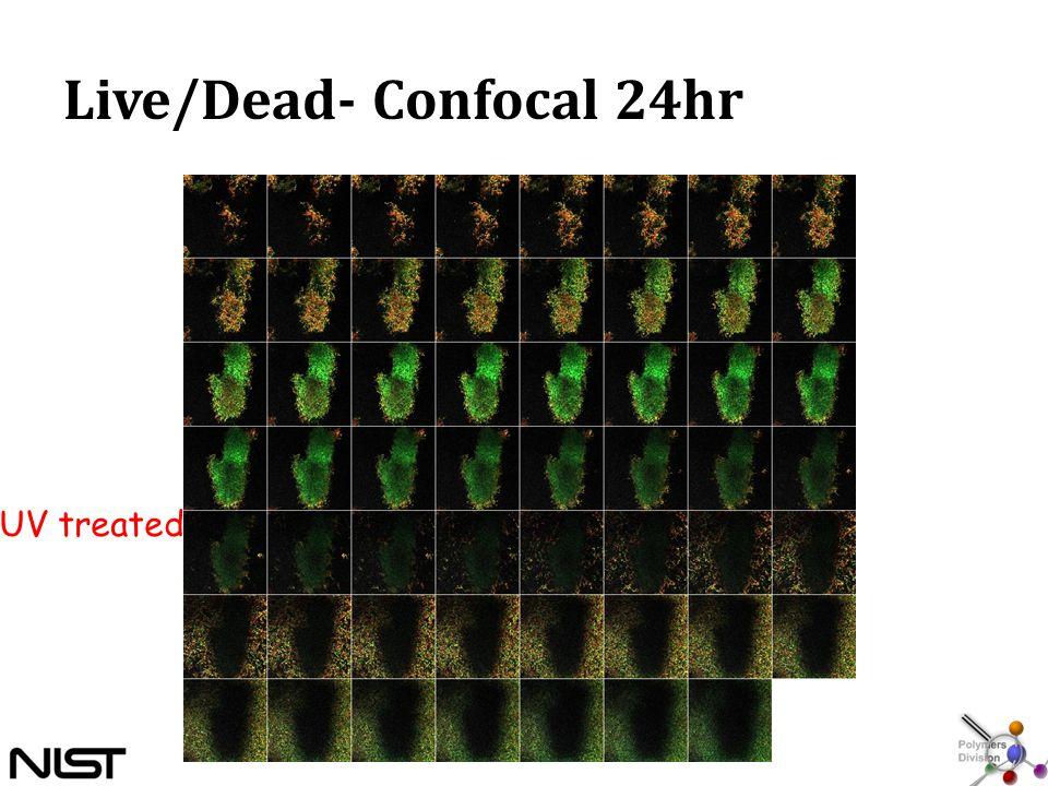 Live/Dead- Confocal 24hr UV treated