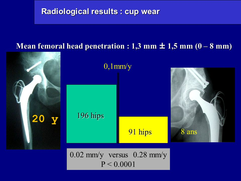 Radiological results : cup wear Mean femoral head penetration : 1,3 mm ± 1,5 mm (0 – 8 mm) 0,1mm/y 91 hips 196 hips 0.02 mm/y versus 0.28 mm/y P < 0.0001 8 ans