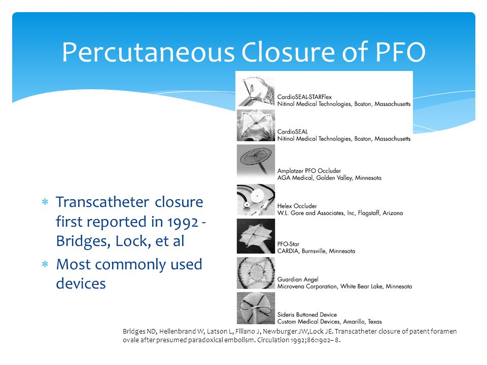 Percutaneous Closure of PFO  Transcatheter closure first reported in 1992 - Bridges, Lock, et al  Most commonly used devices Bridges ND, Hellenbrand W, Latson L, Filiano J, Newburger JW,Lock JE.