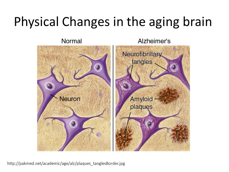 Physical Changes in the aging brain http://pakmed.net/academic/age/alz/plaques_tanglesBorder.jpg