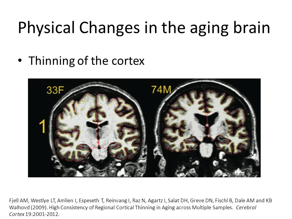 Physical Changes in the aging brain Thinning of the cortex Fjell AM, Westlye LT, Amlien I, Espeseth T, Reinvang I, Raz N, Agartz I, Salat DH, Greve DN, Fischl B, Dale AM and KB Walhovd (2009).