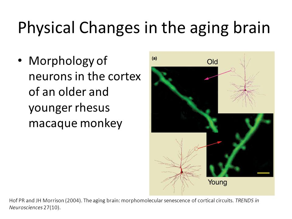Physical Changes in the aging brain Certain diseases can also occur in the aging brain, which are associated with certain physical changes in the brain