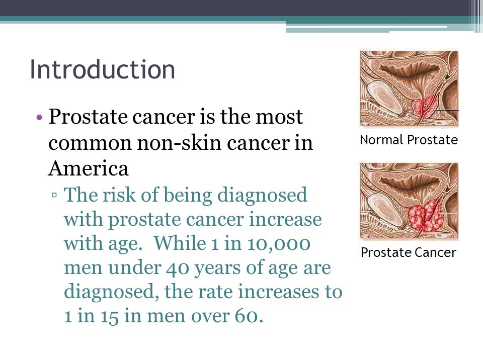 Introduction Prostate cancer is the most common non-skin cancer in America ▫The risk of being diagnosed with prostate cancer increase with age. While