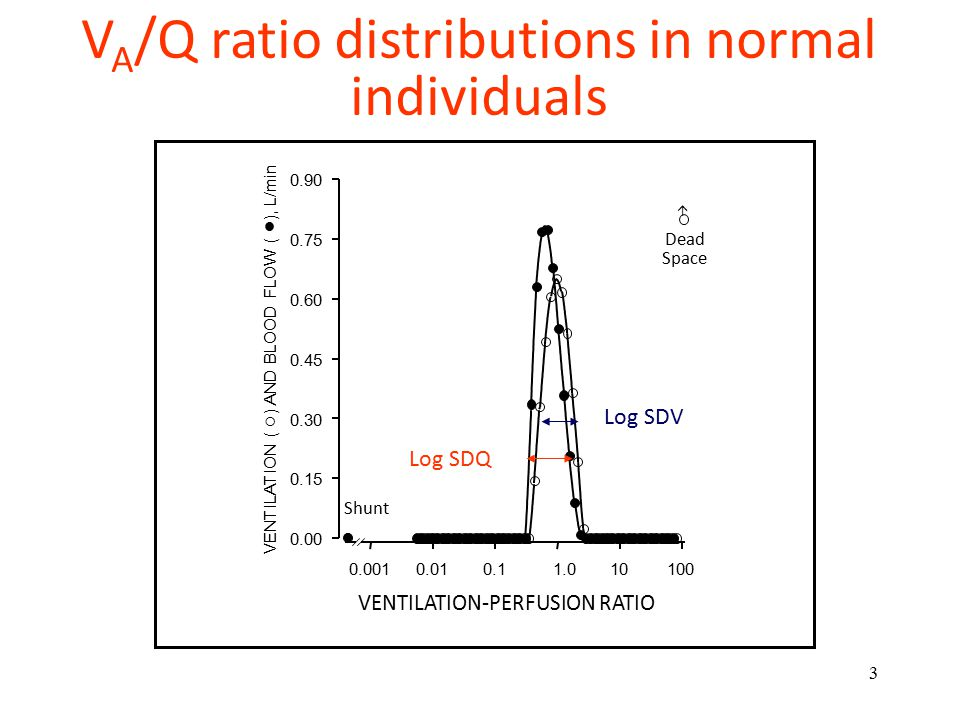 3 Dead Space Shunt V A /Q ratio distributions in normal individuals Log SDQ Log SDV