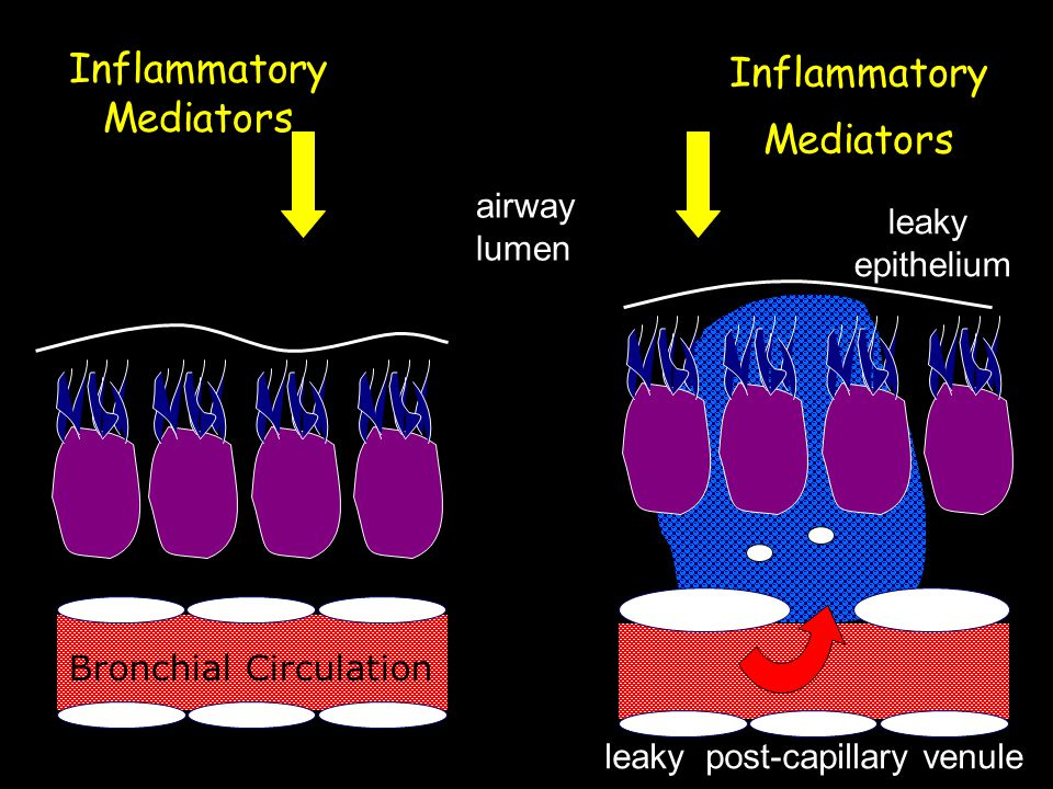 Inflammatory Mediators airway lumen Inflammatory Mediators leaky epithelium leaky post-capillary venule Bronchial Circulation